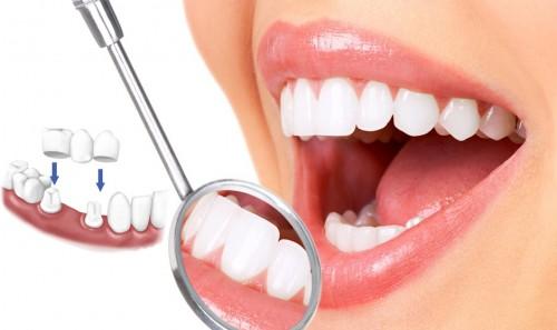 Kết quả hình ảnh cho Phương pháp bọc răng sứ là phương pháp tuyệt vời